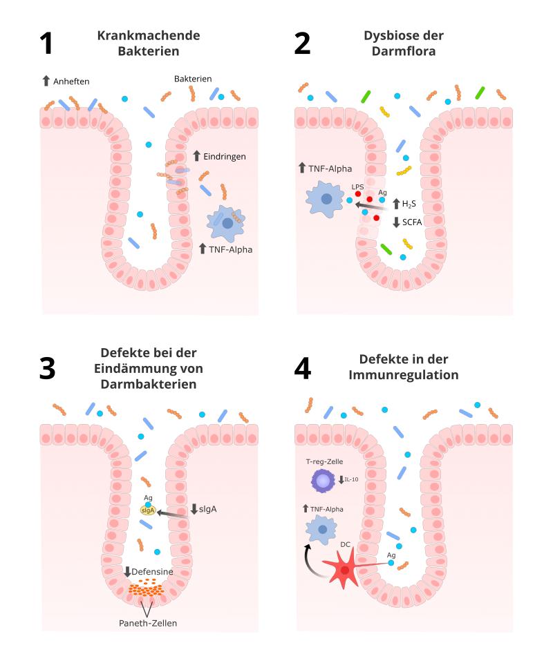 Darmflora und Immunsystem bei Crohn und Colitis